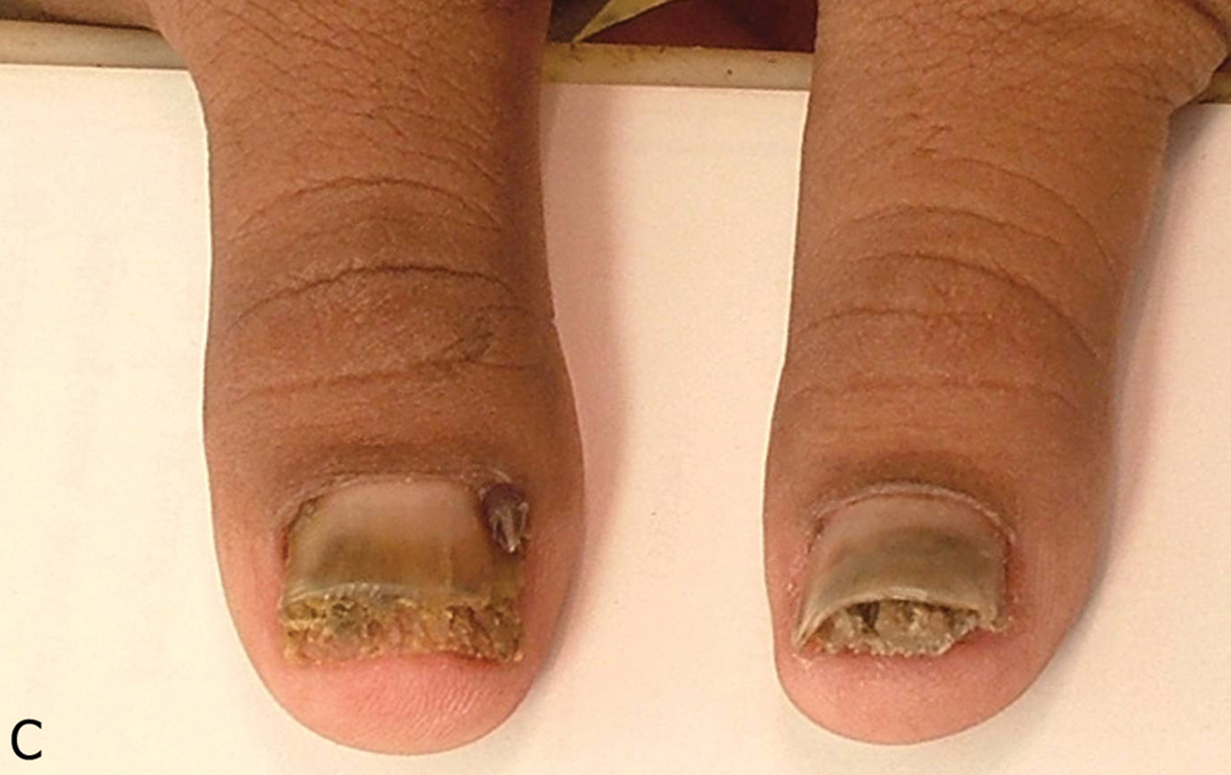 2014 2-13 Tuberous | Our Dermatology Online journal