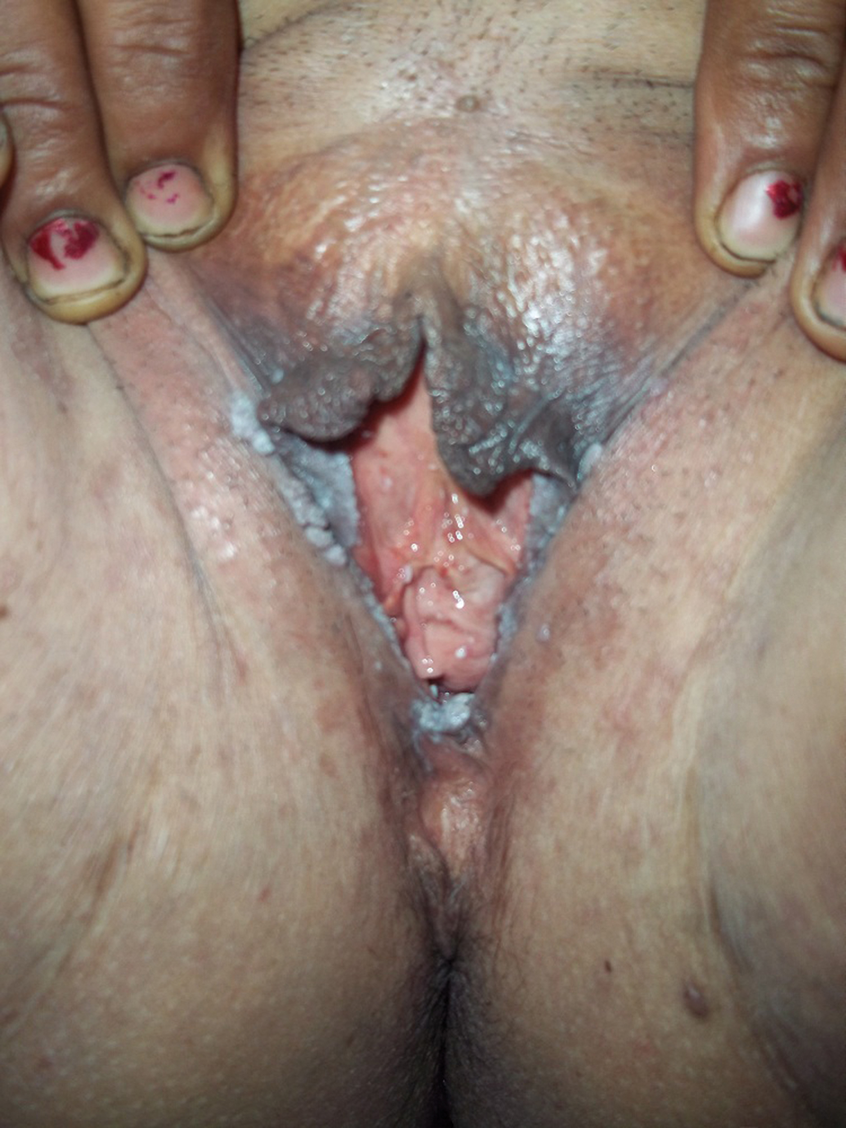 Dating a guy with genital warts