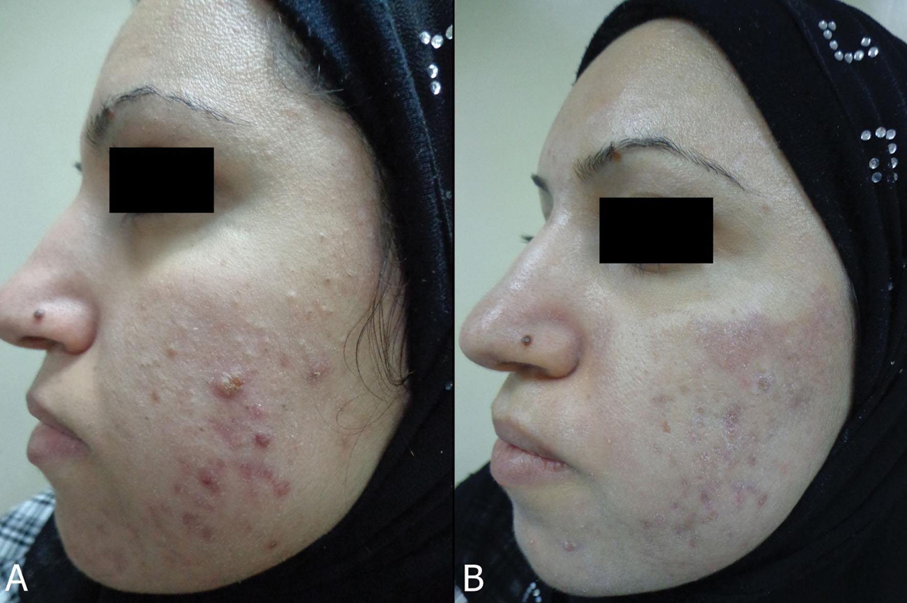 How do I treat moderate acne?   Acne and Rosacea Society ...