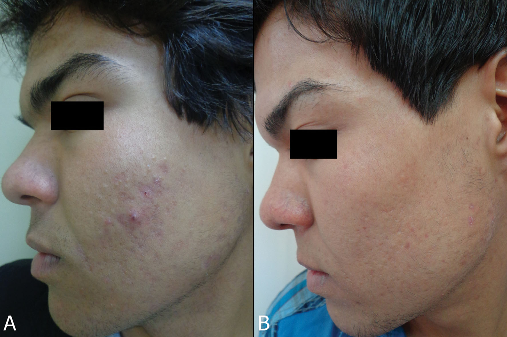 2014 4 1 Treatment Our Dermatology Online Journal