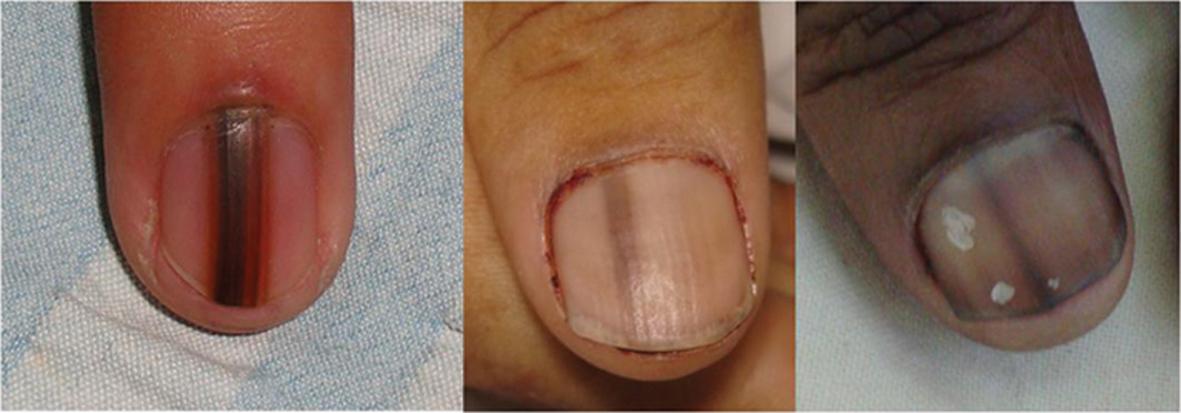 nail melanoma #10