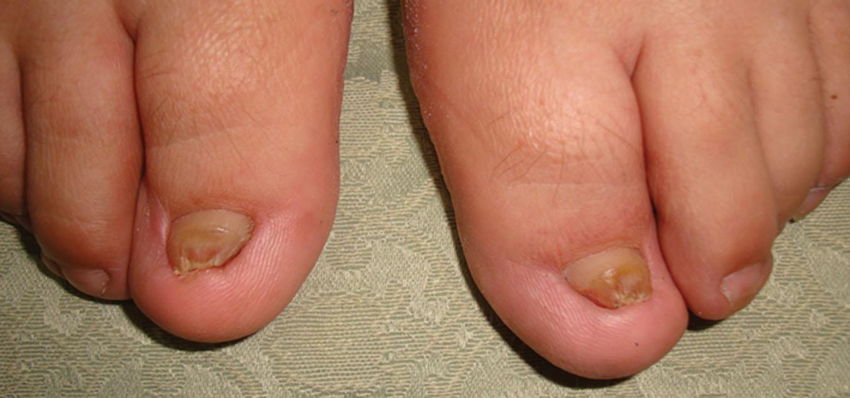 nail avulsion #10