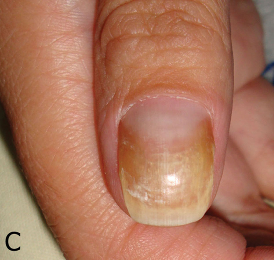 2014.2-25.Onycholysis | Our Dermatology Online journal