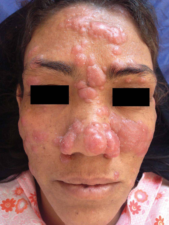 ... for hiv pat... Hiv Patient Face