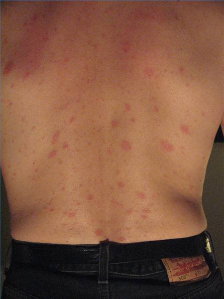 Tree Rash On Back Bestchristmasdealsorg