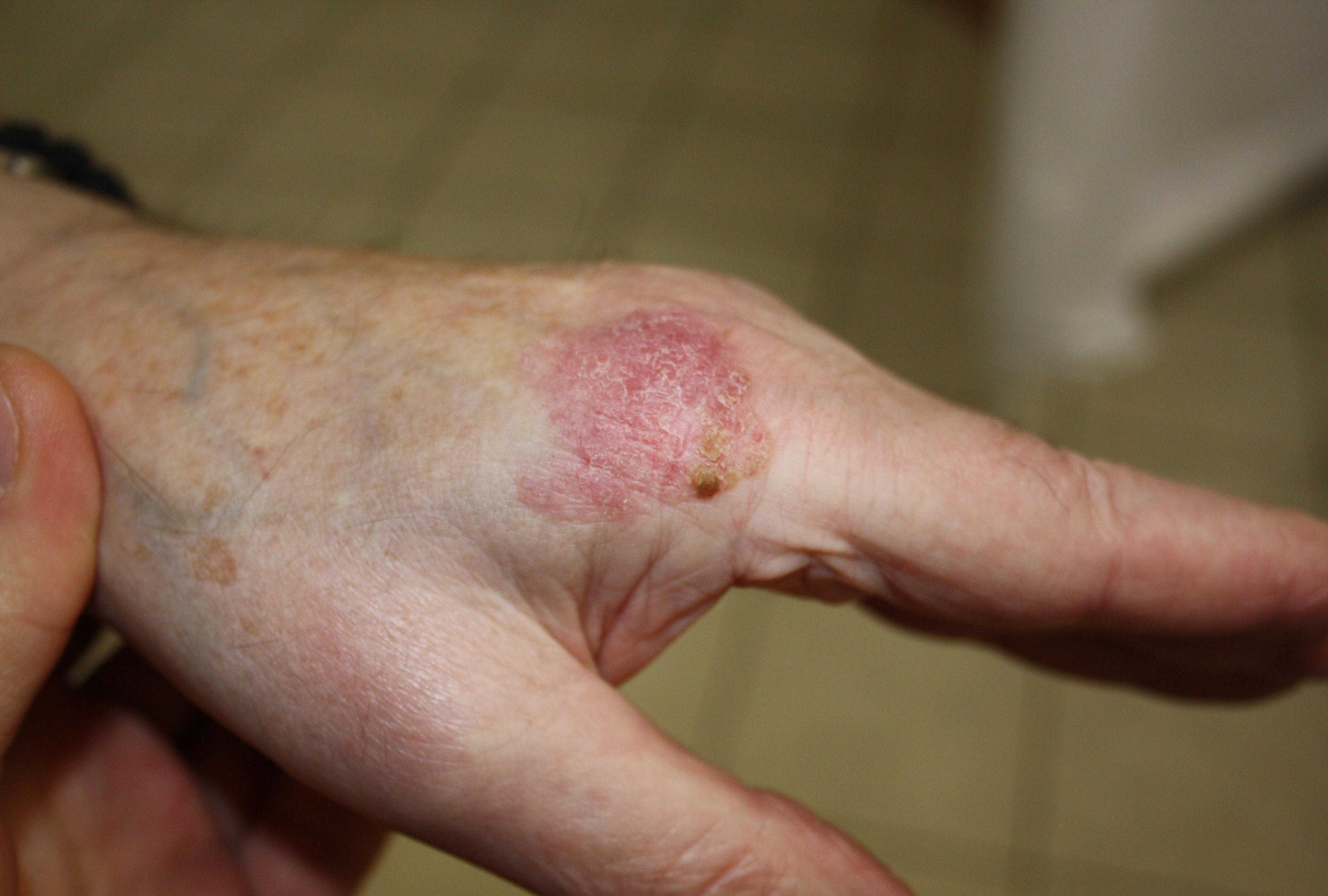 bowen s disease