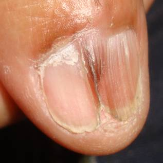 Image result for nail with pterygium