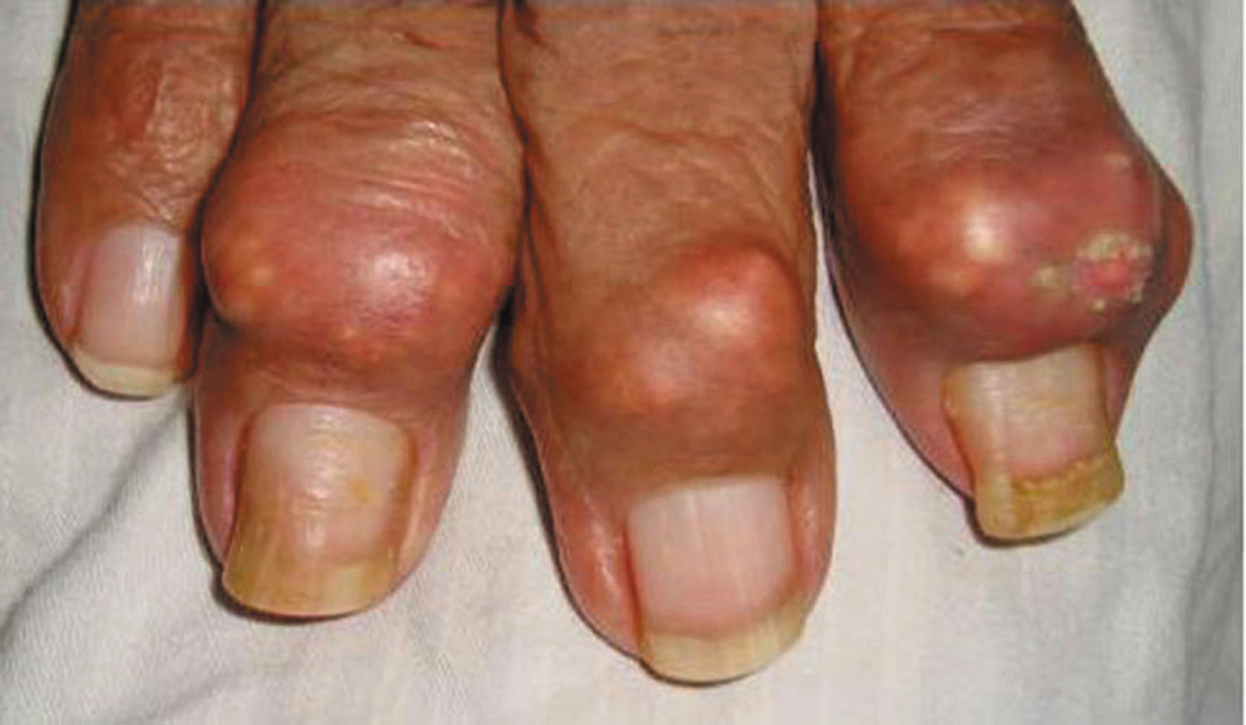 Why are tophi important to gout sufferers? - GoutPal