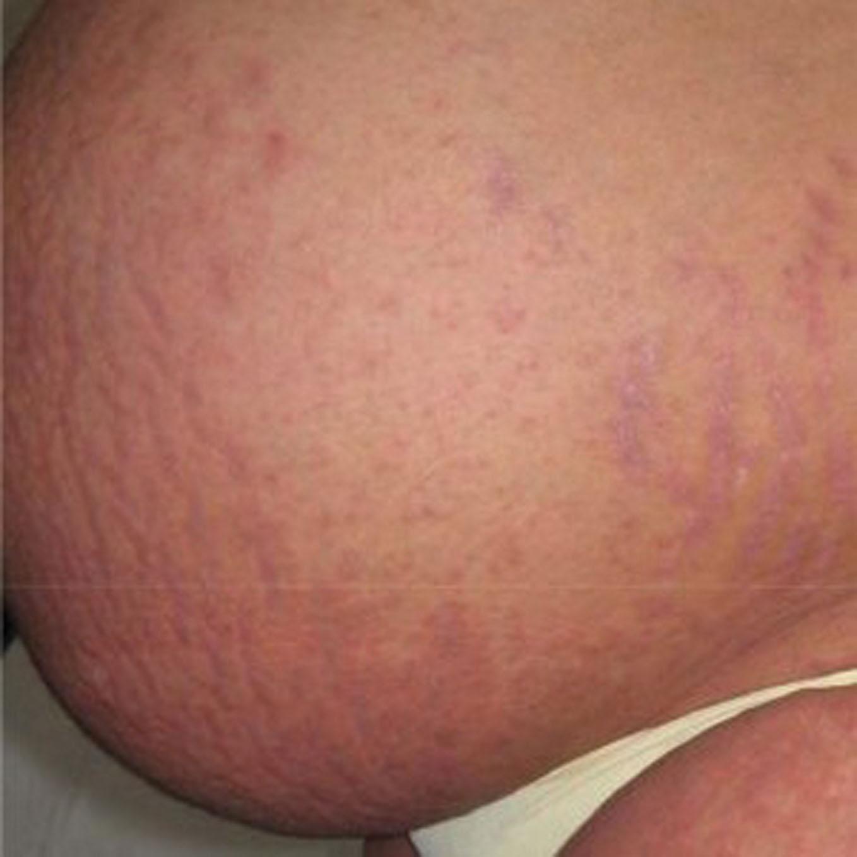 Our Dermatology Online Journal