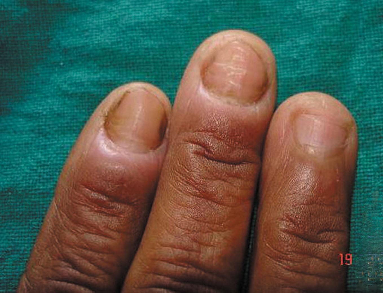Incontinentia Pigmenti Nails