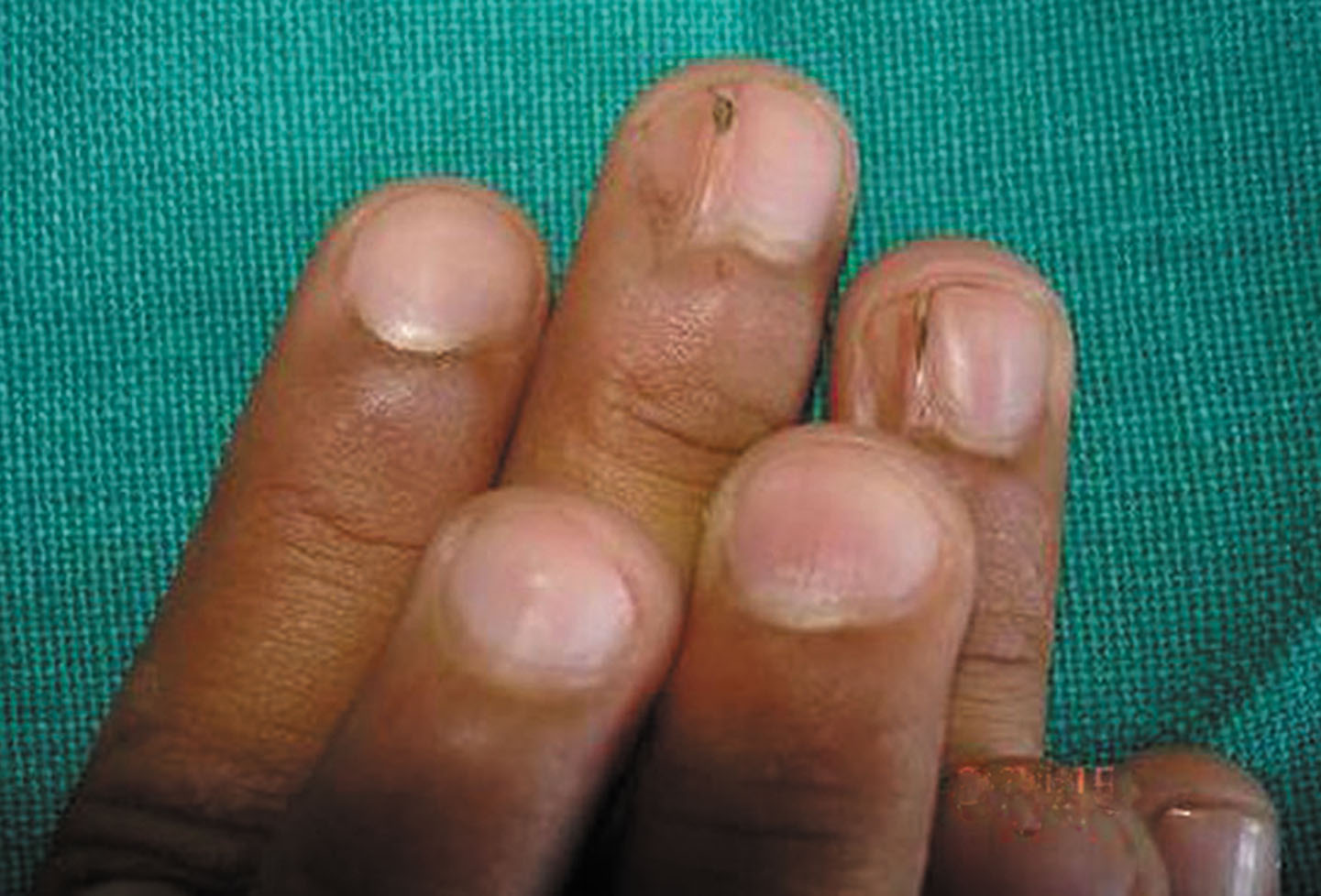 2012.3-2.A study of nail   Our Dermatology Online journal
