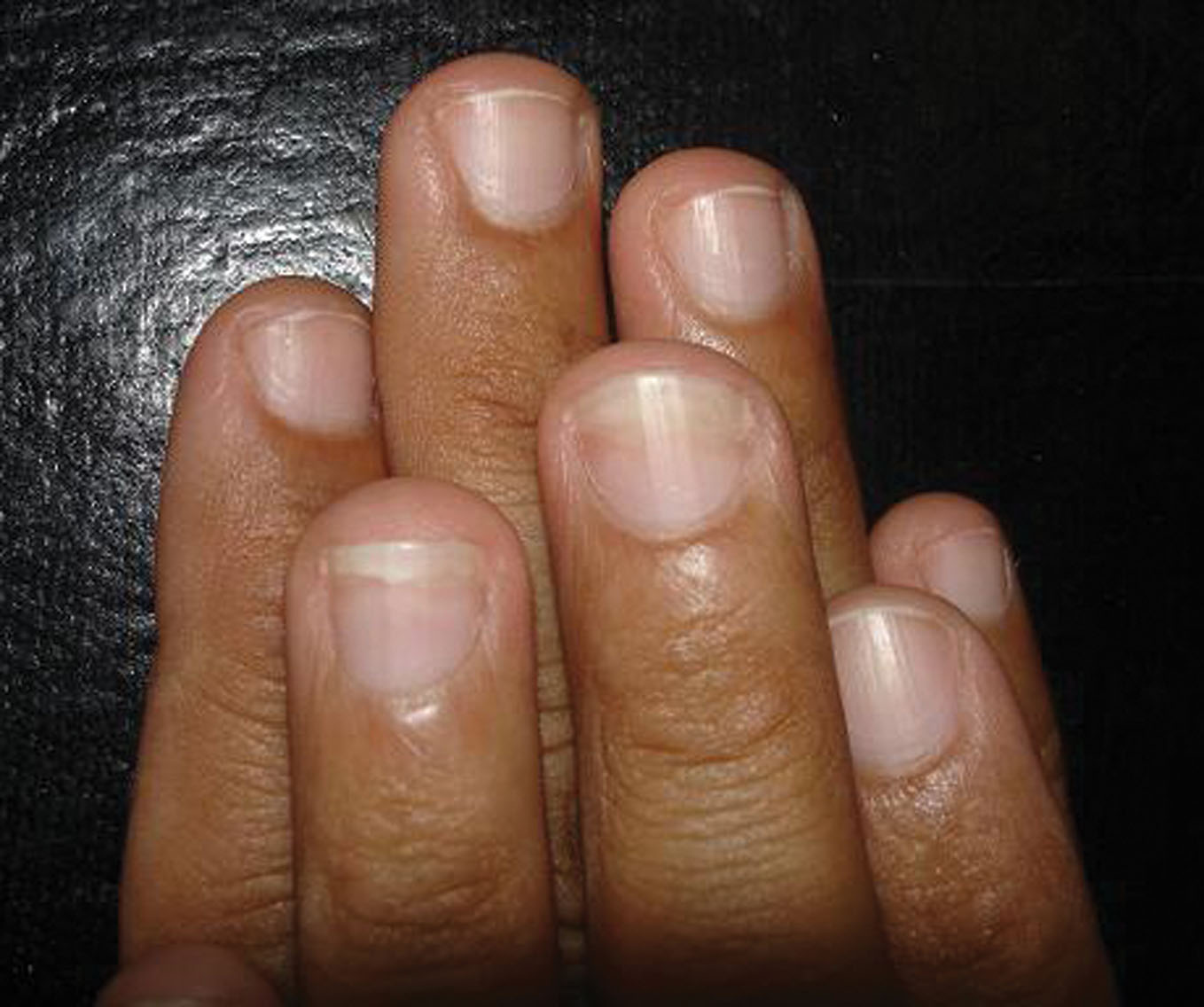 2012.3-3.onychomycosis   Our Dermatology Online journal