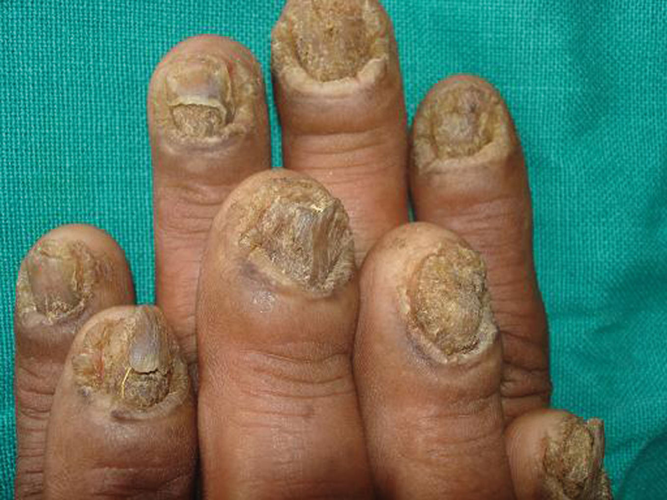 Fungus Infection Hands Male Yeast Infection Symptoms Pictures