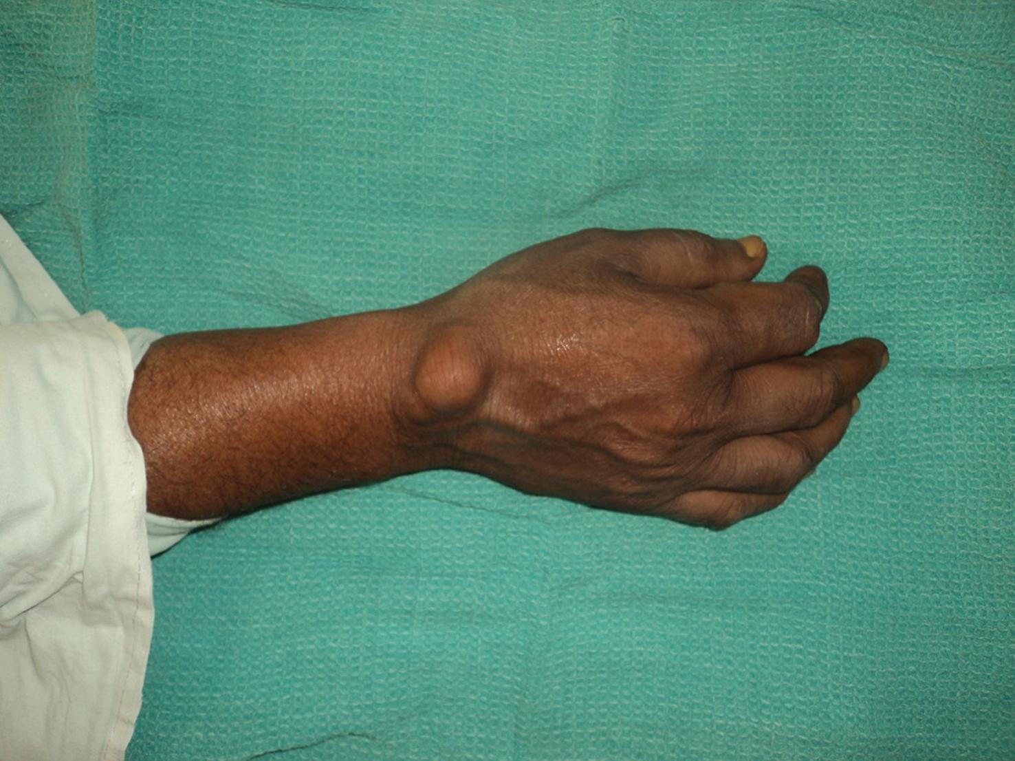 Articulara in tratamentul artritei reumatoide