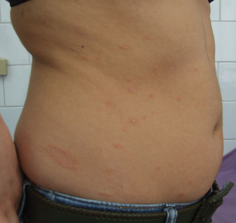 Shingles Pictures: Shingles Rash, Other Symptoms of ...