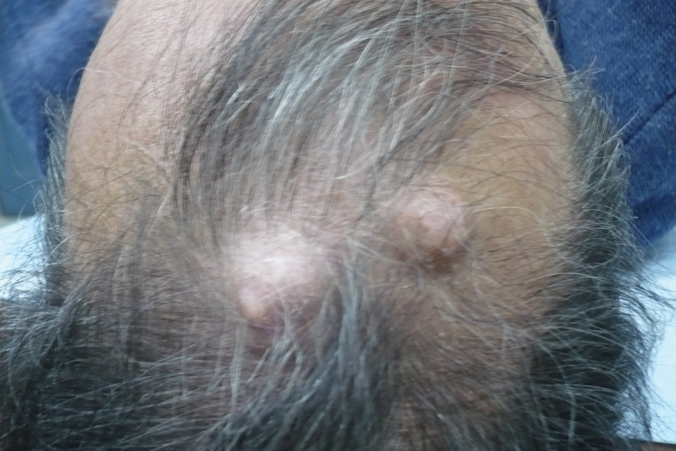 2013.2-24.Claves | Our Dermatology Online journal
