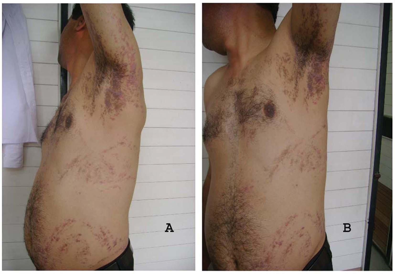 inflammatory pruritic manifestations corticosteroid responsive dermatoses
