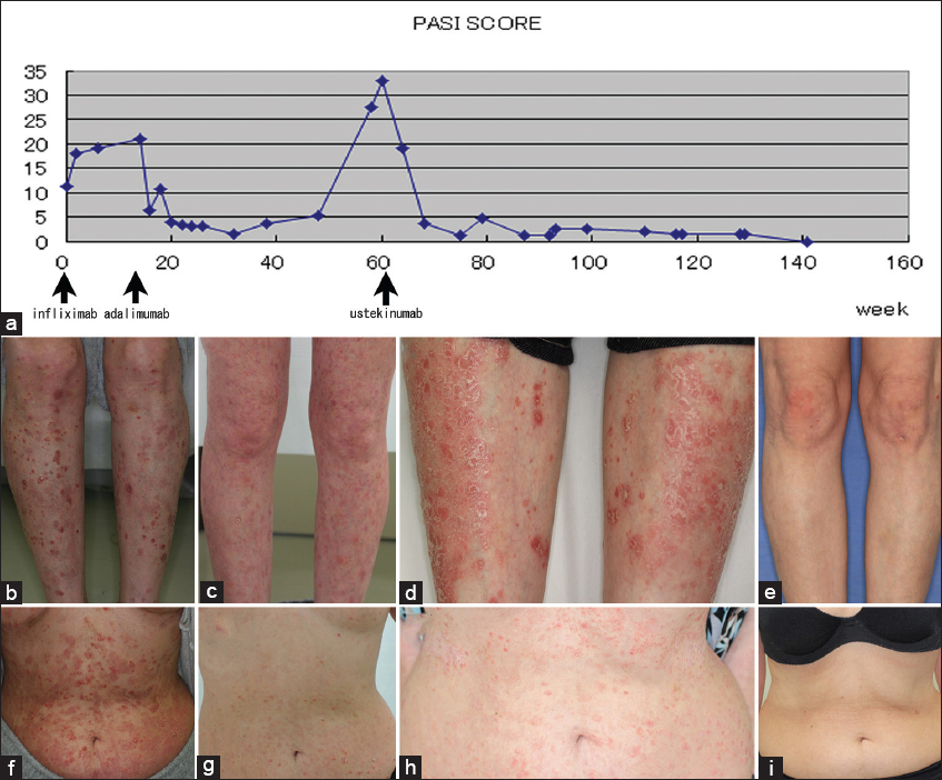 2015 3-10 | Our Dermatology Online journal