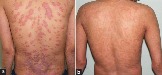 TREATMENT OF GENERALISED PUSTULAR PSORIASIS WITH ISOTRETINOIN 3