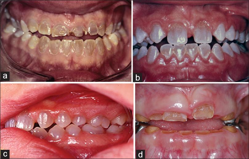 Osteogenesis Imperfecta (Brittle Bone Disease)  |Osteogenesis Imperfecta Symptoms