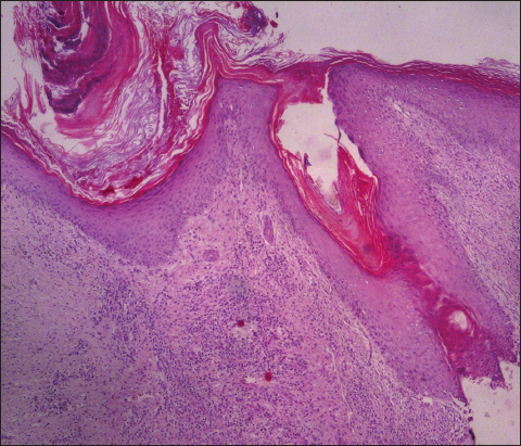 2016 1-32 | Our Dermatology Online journal