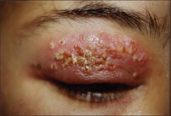 Crusting facial sores