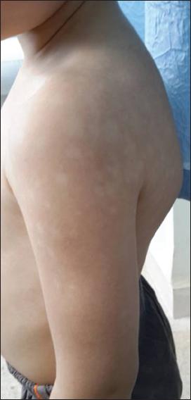 2017 3 7 Vitiligo Our Dermatology Online Journal