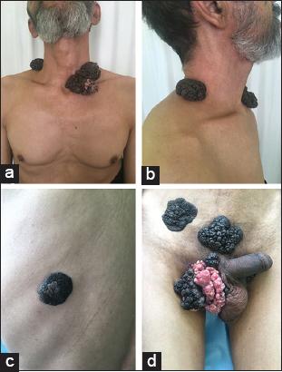 condyloma acuminata neck hpv cancer oesophage