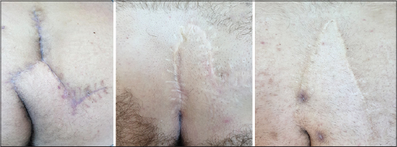 2019 2-1 Limberg | Our Dermatology Online journal